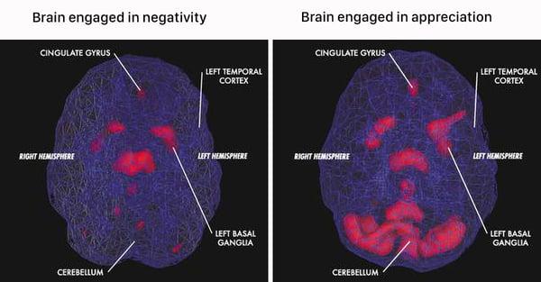 brain_negative vs appreciation